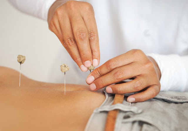 Acupuncture for Fertility in Melbourne | IVF Treatments