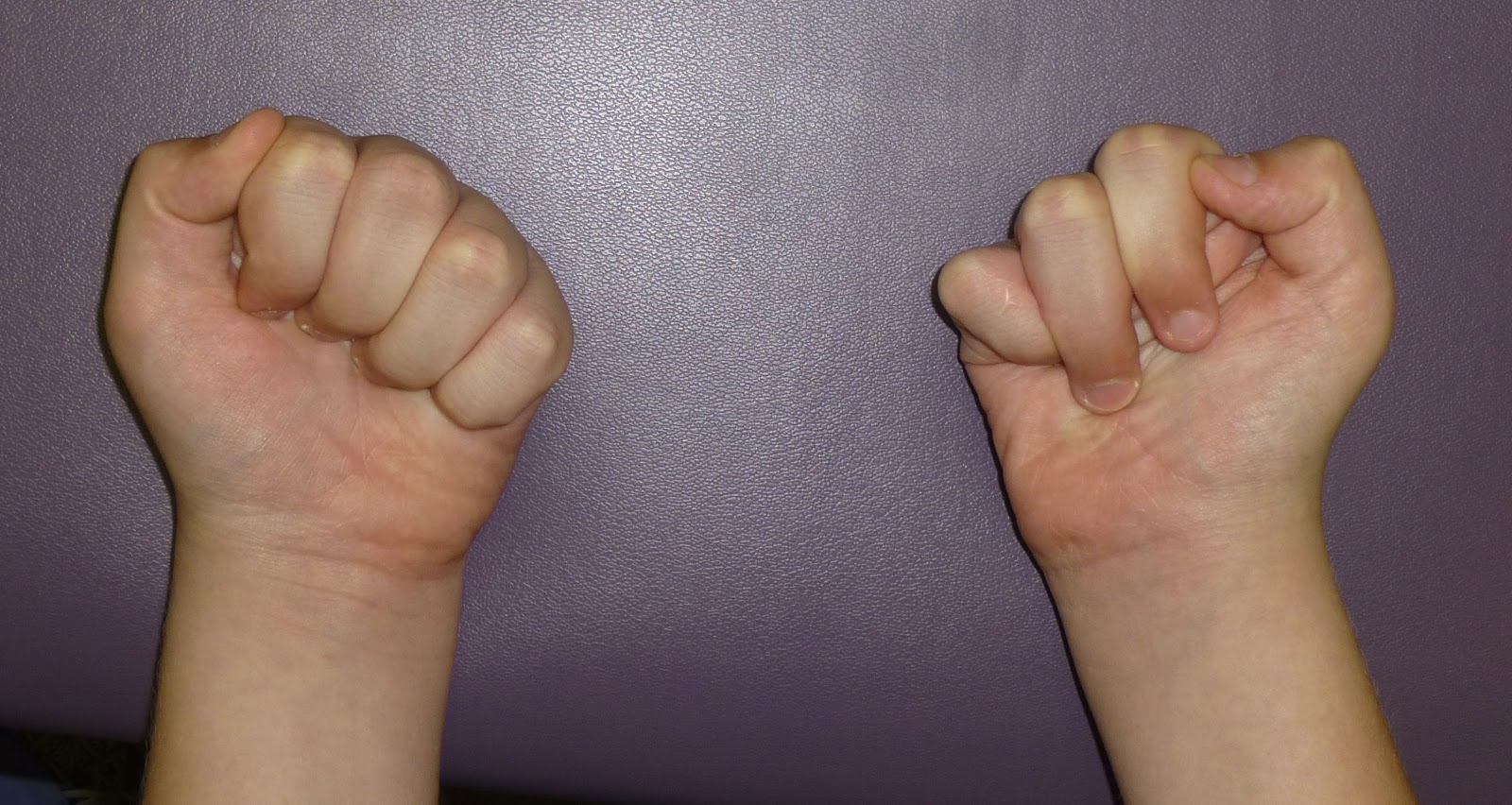 http://1.bp.blogspot.com/-CAkHo2M7XWg/UZf5eDmXJxI/AAAAAAAAAlI/IH_31FLOdXc/s1600/cleft+fist.jpg