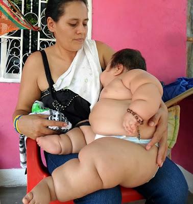 fat baby breastfeeding