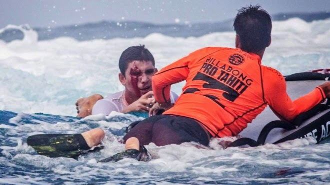 kevin bourez wipeout accidente teahupoo tahiti 2014 1