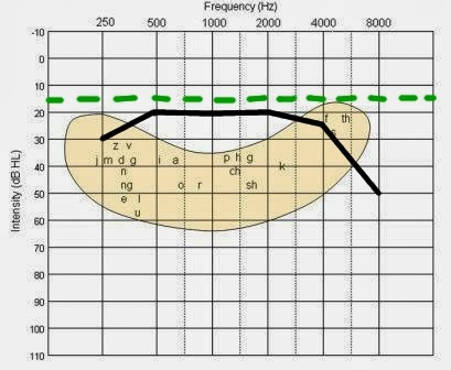 Audiogram Banana Images - Frompo