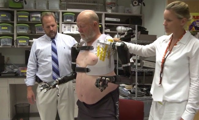 Meet the First Bilateral Shoulder Level Amputee uses Thought Controlled Robotic Arms
