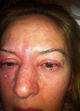 Allergic Reaction To Eyelash Extension Glue Symptoms