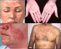 About Lupus | Diases