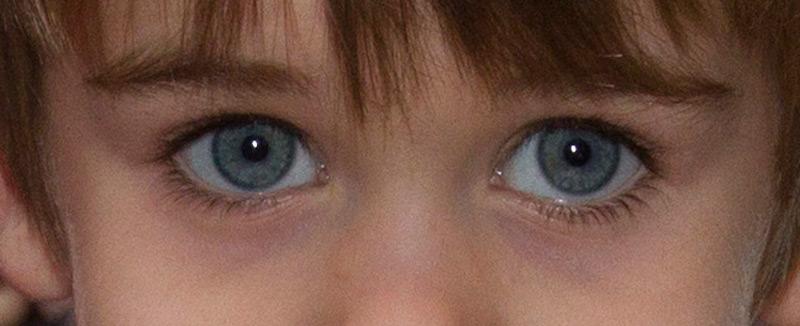 Que aceite cosmético es mejor para la piel alrededor de los ojos