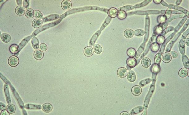 Candida Albicians Adalah Jamur yang Menyerang Saat Imun Lemah