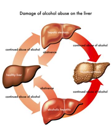 शराब से होने वाले नुकसान