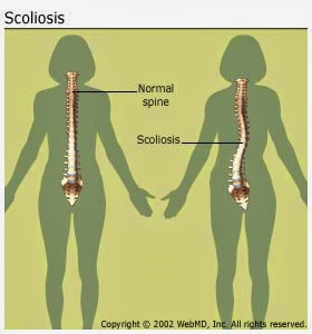 Scoliosis, Natural Scoliosis Correction,