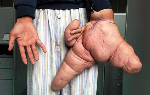 most horrible weirdest strangest diseases massive largest hand