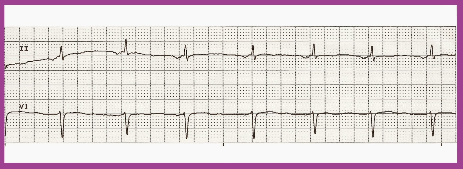 Accelerated junctional rhythmAccelerated Junctional Rhythm