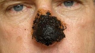 Skin cancer on face pictures