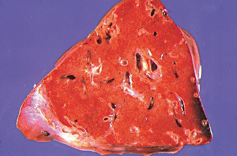 es una sección de hígado de un pescador en la que se ve los efectos de la clonorchiasis