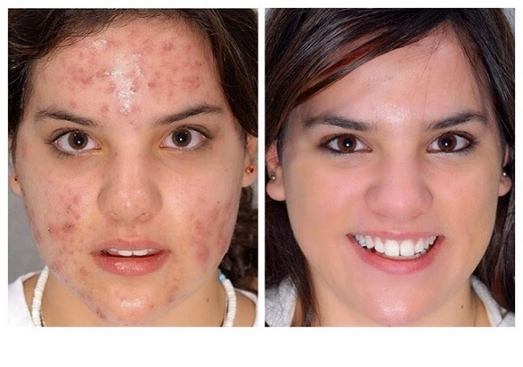 http://www.nhtips.com/2015/01/how-to-remove-acne-facial-scars.html