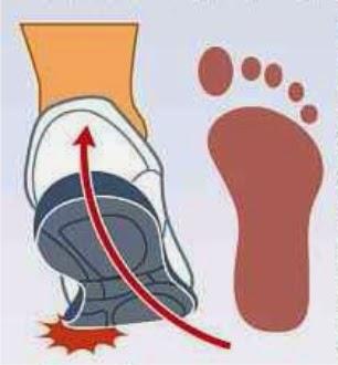 56aa569f157 PRONAÇÃO  A pronação ou pisada pronada acontece quando há uma rotação  interna excessiva do pé e do tornozelo ou seja ela começa do lado externo  do calcanhar ...