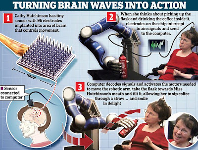ROBOT ARM ACTIVATED BY MIND-READING BRAIN IMPLANT