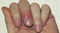 Paronikia (Infeksi kuku/ Kuku bernanah) gejala penyebab dan cara mengatasi mengobati