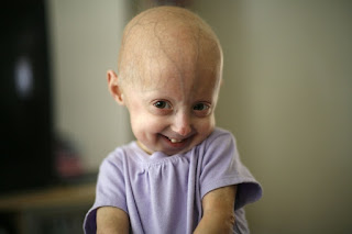 Safe And Inexpensive Chemical Reverse Symptoms Of Progeria