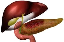 Tratamentul naturist al pancreatitei