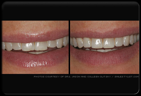 طب الاسنان التجميلي 5.jpg