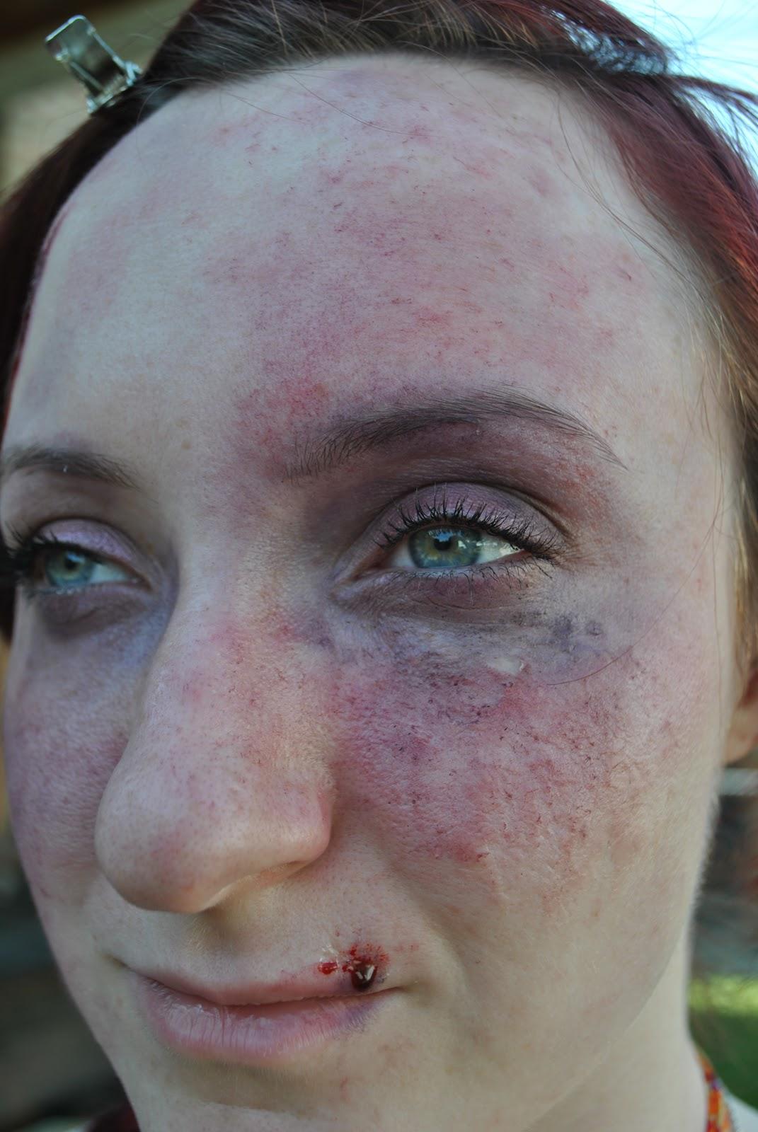 Makeup Ideas bruise makeup : Makeup: Bruise Testing 02