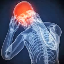 Chronic, Migraines, upper cervical care, chiropractic