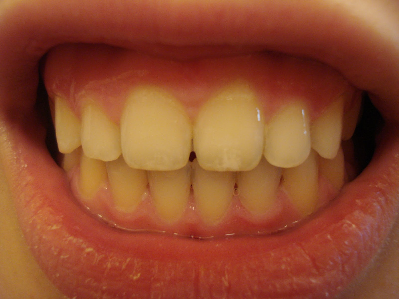 Whitestrips intensive professional effects before and after crest 3d