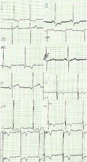 Signes ECG de l'insuffisance cardiaque chronique