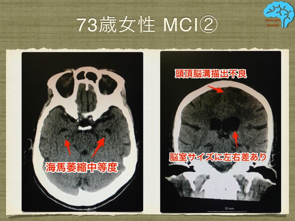 やや正常圧水頭症を示唆するCT画像