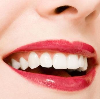 Agar Gigi Putih