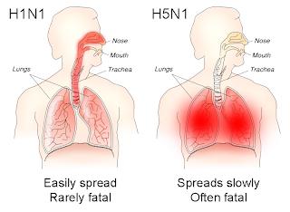 Bird Flu Symptoms in Humans