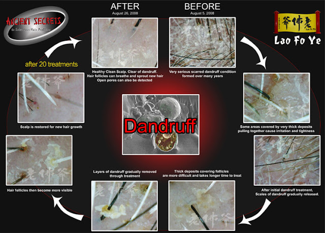dandruff treatment
