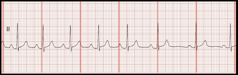 arrhythmia information Looking for online definition of benign arrhythmia in the medical dictionary benign arrhythmia explanation free  this information should not be considered.