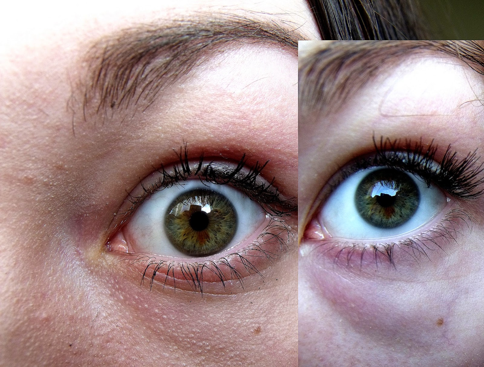 Is It Possible For Your Eye Color To Change Naturally