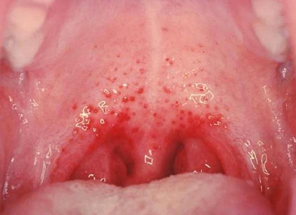 "an analysis of the infections mononucleosis as the kissing disease by epstein barr virus Infectious mononucleosis: the ""kissing disease  epstein-barr virus (mononucleosis and lymphoproliferative  tosato g, meier j epstein-barr virus infections:."