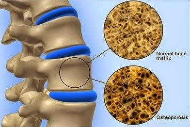 Bahaya Tulang Rapuh (Osteoporosis)