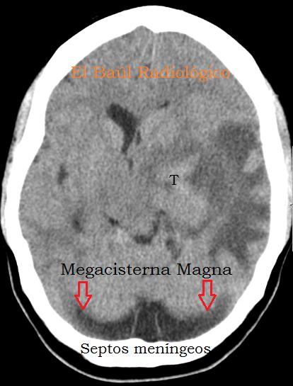 Magna+111.png