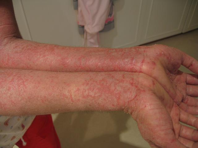 Symptoms of Eczema On Arms