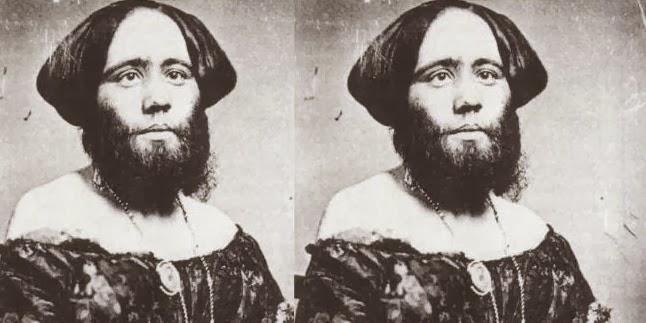 5 Wanita Ini Tetap Percaya Diri Meski Punya Jenggot