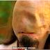 فيديو : رجل فقد وجهه في صعقة كهربائية