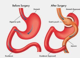 reparación bypass gástrico por vía endoscopico