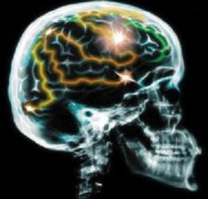 Pengertian Gray Matter dan White Matter pada otak