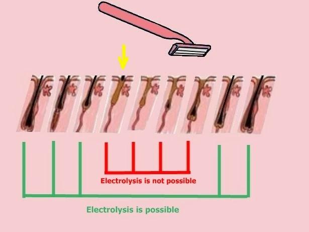 Recortado, SÍ... Rasurado, NO | Depilación Eléctrica Definitiva ...