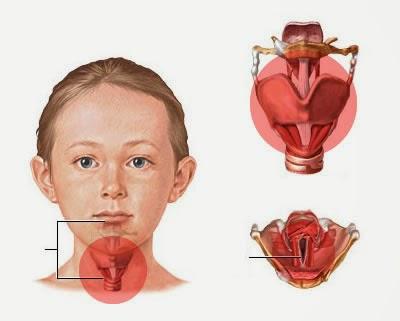 Obat Laringitis Tradisional
