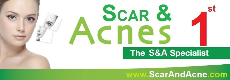 ScarAndAcne.com