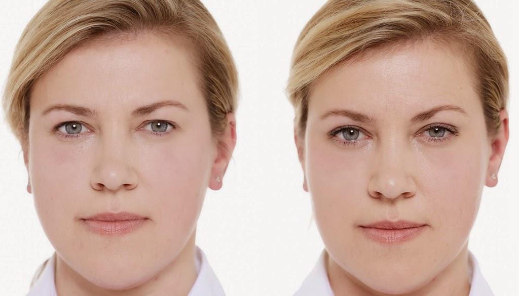 Comment avoir un regard jeune et frais sans passer par la case chirurgie ?