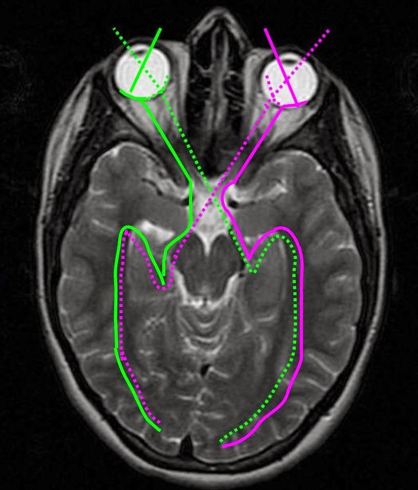 Diarios de Radiologia: TRACTOGRAFÍA: EL CEREBRO AL DESCUBIERTO