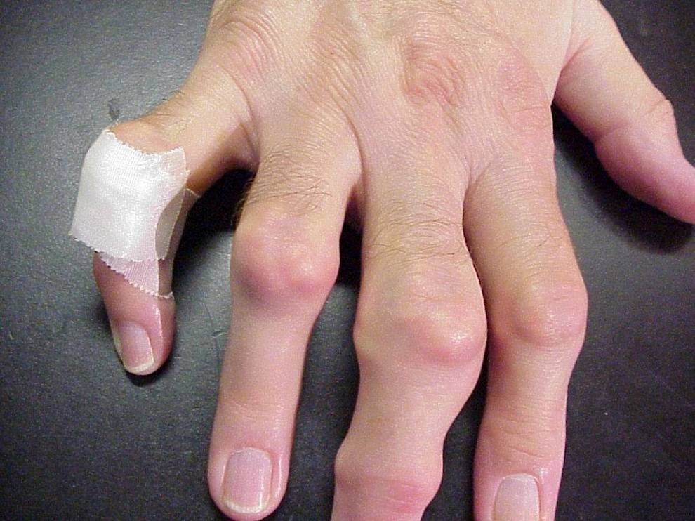 Gout  Musculoskeletal and Connective Tissue Disorders