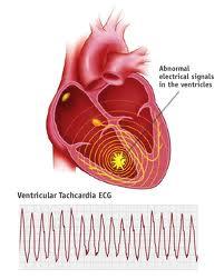 ventricular tachycardia diagnosis