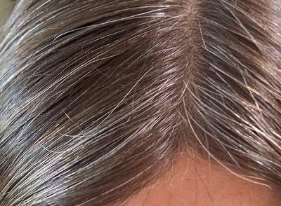 grey-hairs