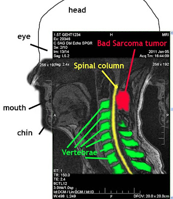 MRI image of neck cervical vertebrae and sarcoma tumor